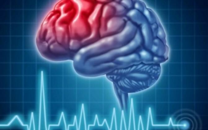 Հոկտեմբերի 29-ը գլխուղեղի կաթվածի դեմ պայքարի համաշխարհային օրն է